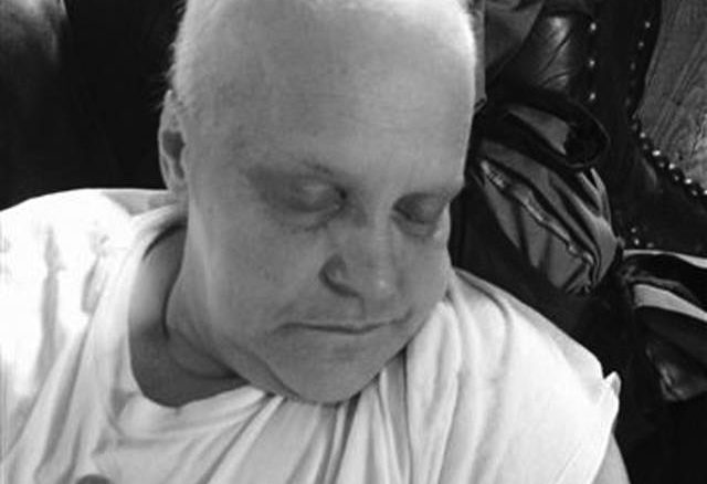 Kim Johnson during the time she was receiving intensive treatments for cancer.